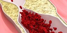 Атеросклероз нарушает нормальное кровоснабжение тканей мозга.