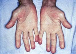 Ладони пациента страдающего инфекционным эндокардитом.