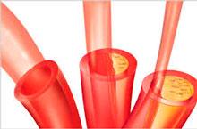 Пораженные атеросклерозом сосуды препятствуют нормальному кровоснабжению сердца.