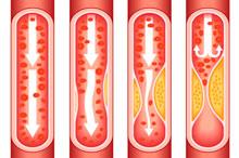 Атеросклероз сосудов нарушает кровоснабжение жизненно важных органов.