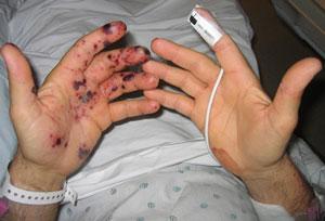Ладони больного инфекционным эндокардитом.