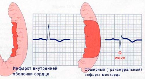 основные причины обширного инфаркта миокарда
