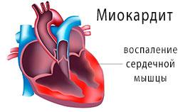 Миокардит — поражение сердечной мышцы, миокарда.
